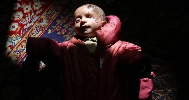 Doğu Gutalı öksüz bebeğin mucizevi direnişi sürüyor