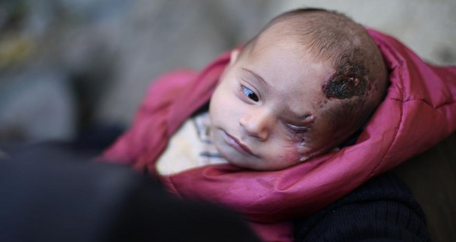 Dünya Doğu Guta'nın simgesi Kerim bebeği 'gördü'